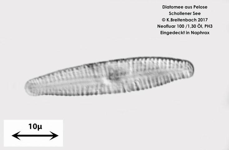 Diatomee aus der Pelose aus dem Schollener See, vermutlich Diatome spec.