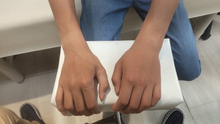 コーレス骨折の外観写真