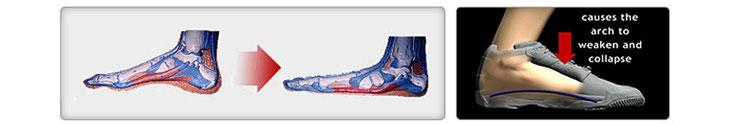 靴と足のアーチ関係