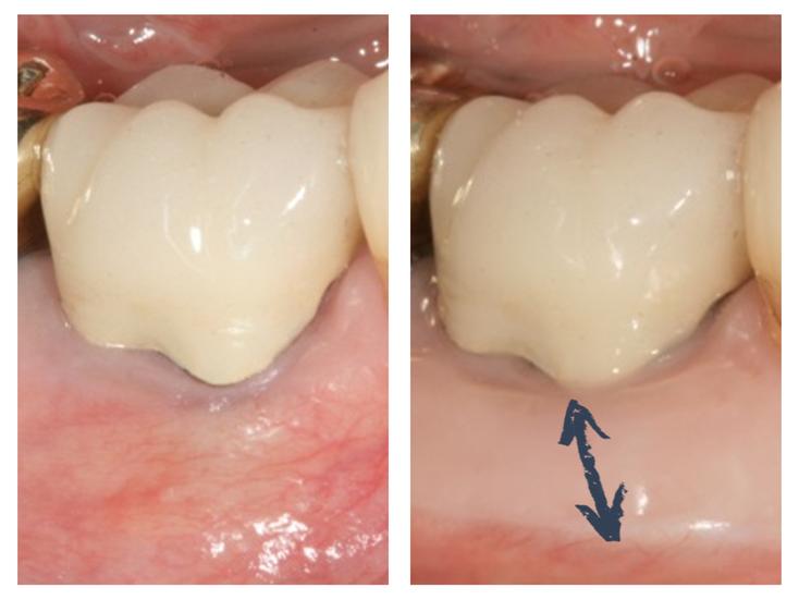 Greffe épithélio-conjonctive en regard d'une couronne dentaire prothétique © ParoSphère