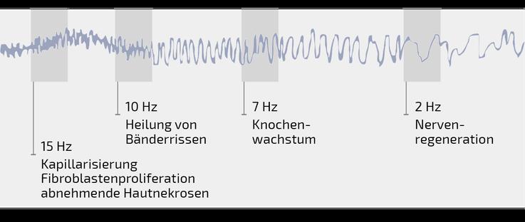 Extrem niedrige Frequenzen (ELF) die einen stagnierenden Heilungsprozess in einen aktiven Reperaturvorgang umwandeln können.