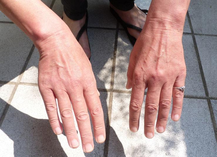 Beachten Sie die unterschiedlichen Hauttöne der Hände
