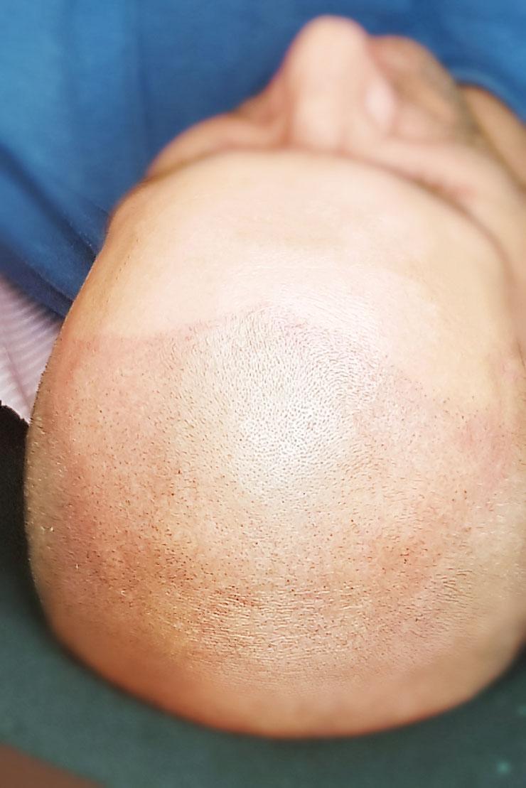 Zagęszczenie włosów na skórze głowy.