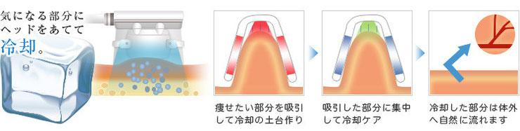 脂肪冷却の流れ、痩身の仕組み