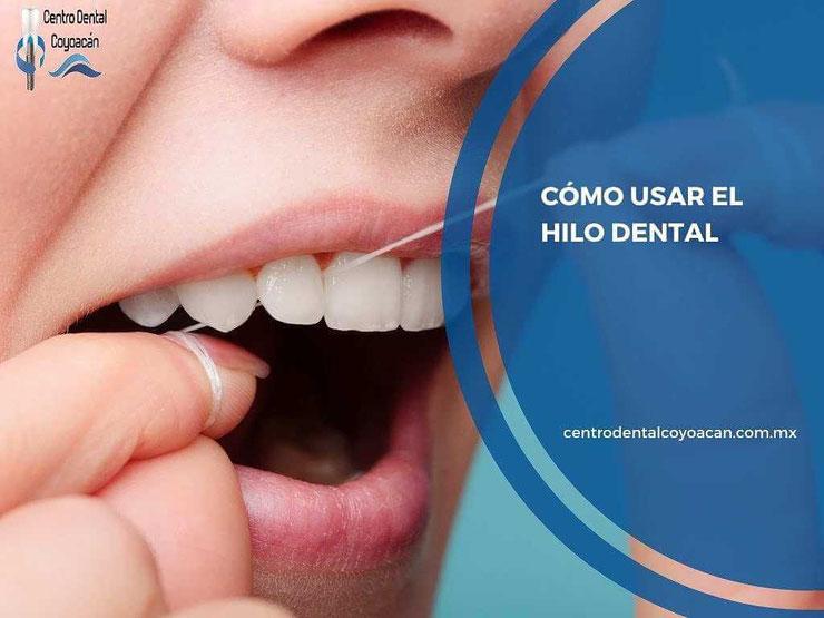 como usar el hilo dental - dentista en coyoacán - clínica dental en coyoacán