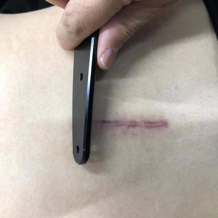 椎間板ヘルニア手術後の浅筋膜トリートメント