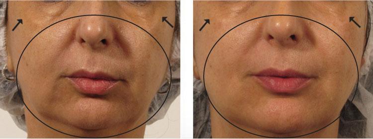 Sofort sichtbare Ergebnisse: Faltenreduktion, Hautverjüngung und -straffung in Basel