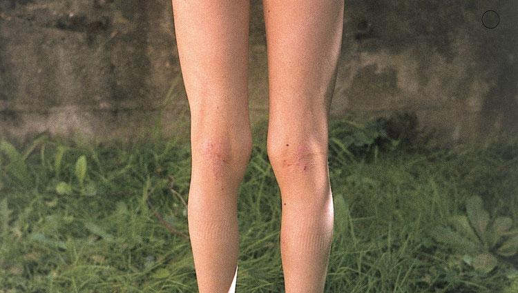 Leichte Form einer Neurodermitis mit einem juckenden Ekzem in den Kniekehlen. Diese Symptomatik kann sich in schweren Fällen auf den ganzen Körper ausdehnen.