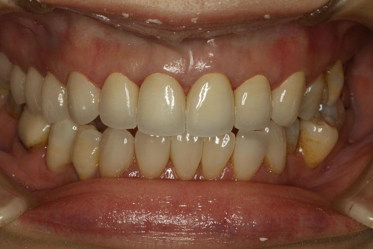 ジルコニアの差し歯