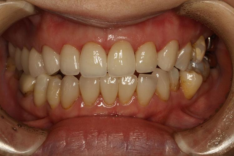 オールセラミックの差し歯