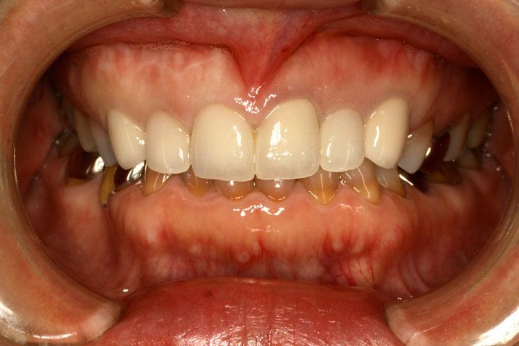 変色した前歯の治療