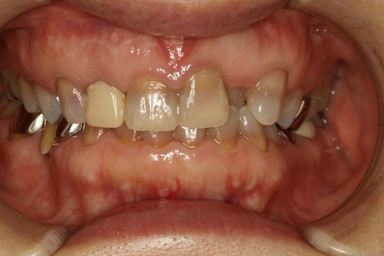 変色した前歯
