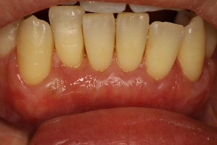 歯茎の回復した状態