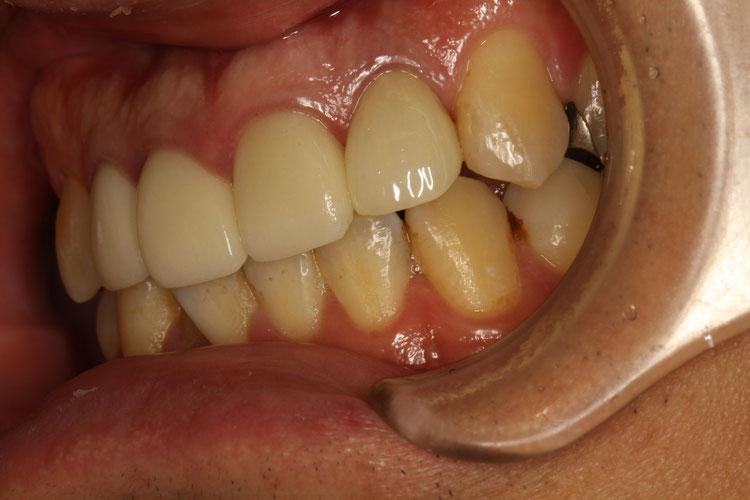 歯を抜いてインプラントにするべきか