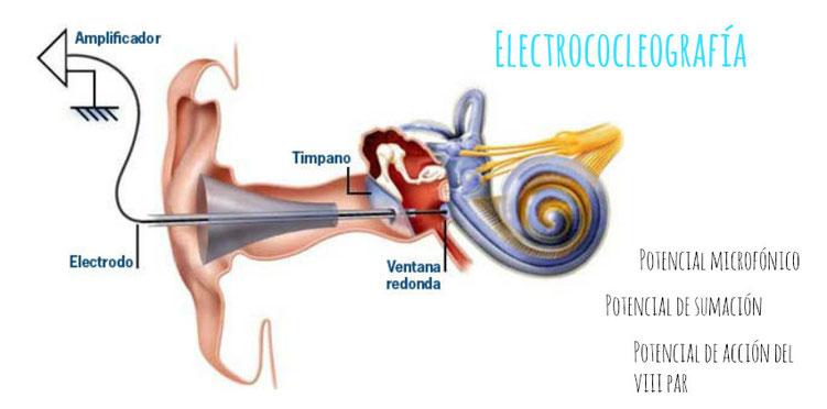 La electrococleografía