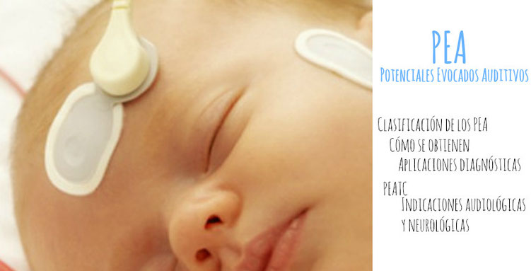 Los potenciales evocados auditivos PEA
