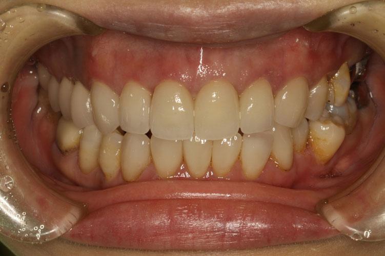上の歯6本の差し歯治療