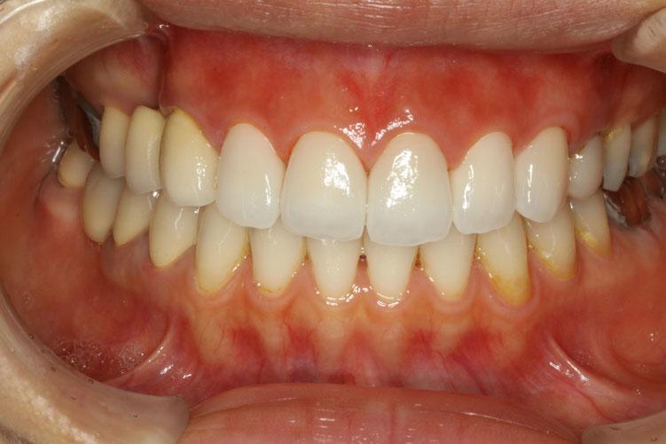 差し歯の治療例