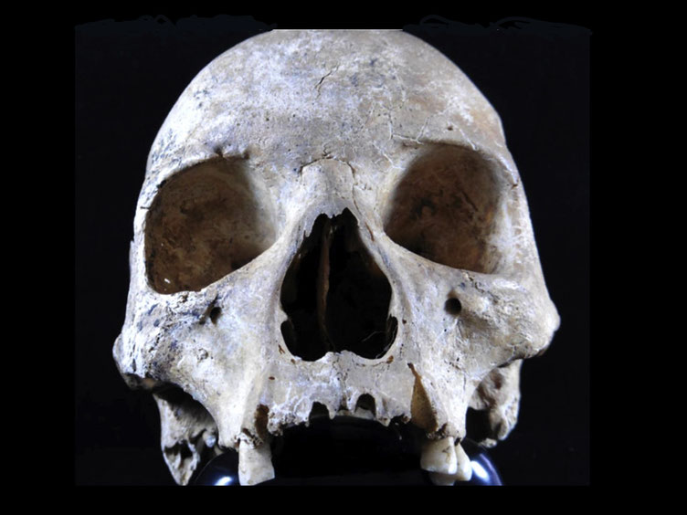 Leprosy infected woman's skull medieval England