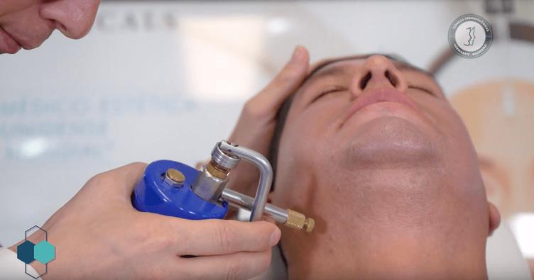 verrugas en el cuello, verrugas virales, dermatologo, racderma