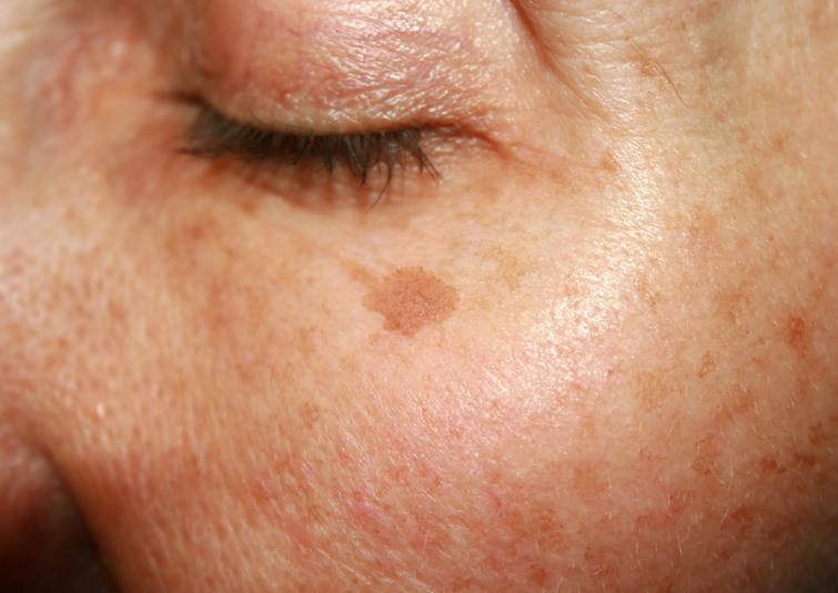 Entfernen von Pigmentflecken, Melasma, Flecken im Gesicht, Eis gegen Flecken, Cryotherapie, Pusteln, Akne, Falten, Hyperpigmentierung, Altersflecken, Fibrome, Warzen