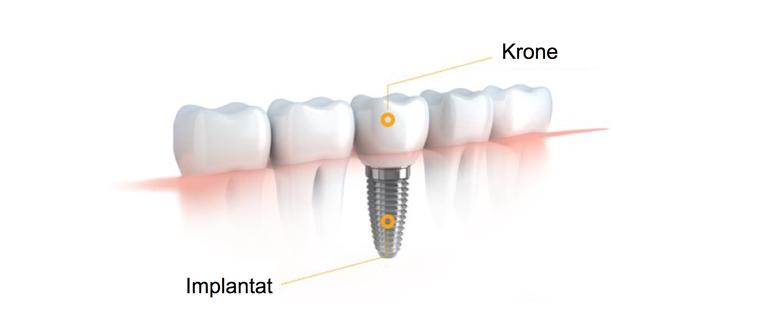 Kronenversorgung durch Cerec Sirona - Zahnarzt Knittelfeld - Zahnarztpraxis Knittelfeld - zahnarzt-knittelfeld.at