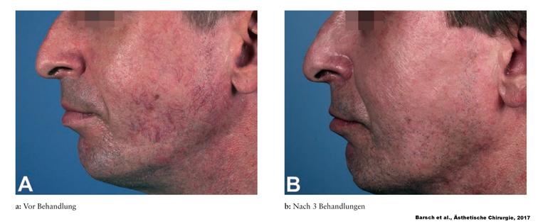 Entfernung von Teleangiektasien an der linken Wange nach 3 Behandlungen