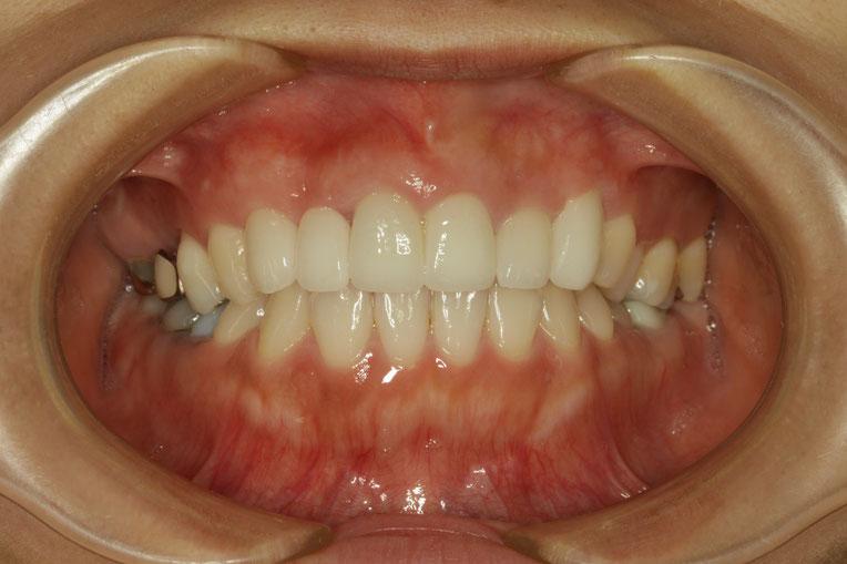 オールセラミック 治療に合わせて歯茎の再生治療を行うことで、歯の形を改善しました。