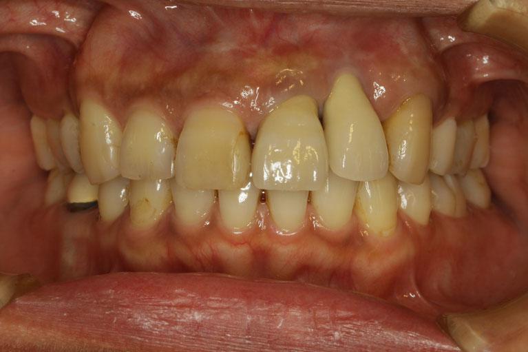 歯茎の再生 62 長くなったオールセラミックブリッジ審美治療