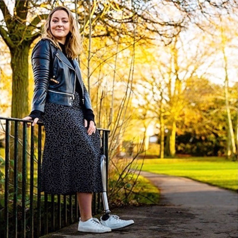 After fundraising for her own prosthesis, Josephine now assist others to come to terms with limb loss (picture courtesy of Josephine Bridges)