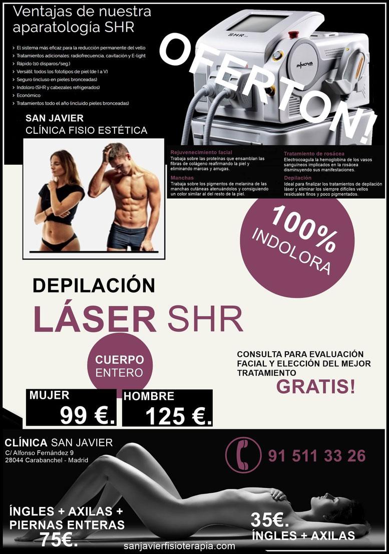 Depilacion laser Madrid