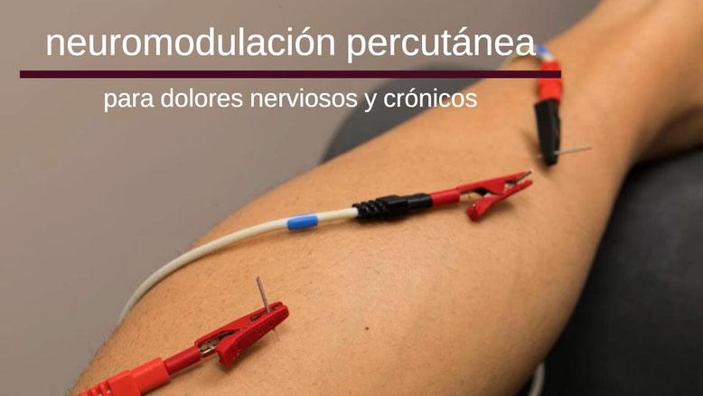 neuromodulacion madrid