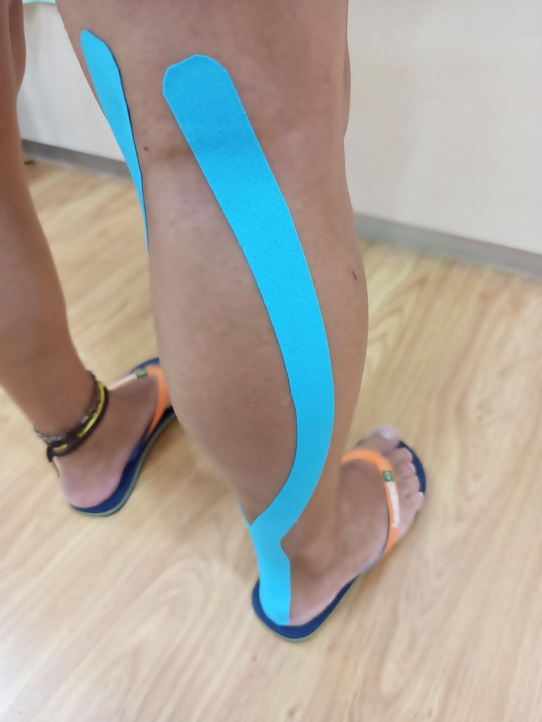 kinesiotaping madrid