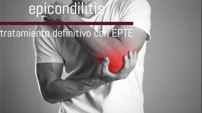 epicondilitis carabanchel