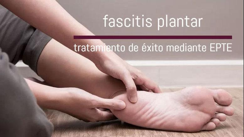 Tratamiento fascitis plantar