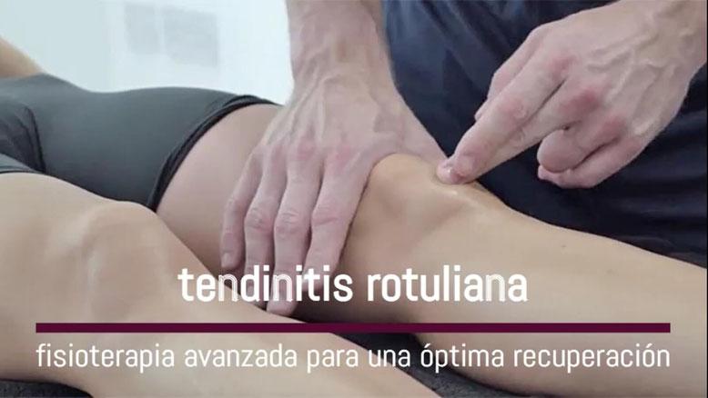 tendinitis rotuliana Madrid