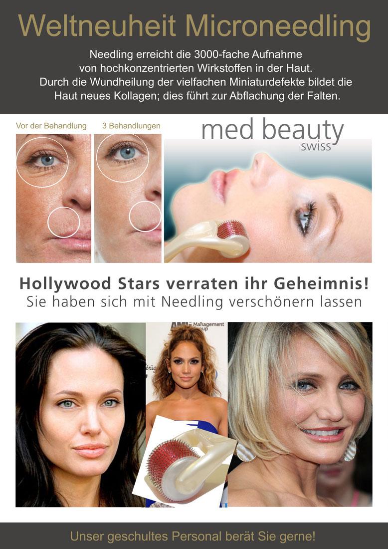 Needling_Poster2