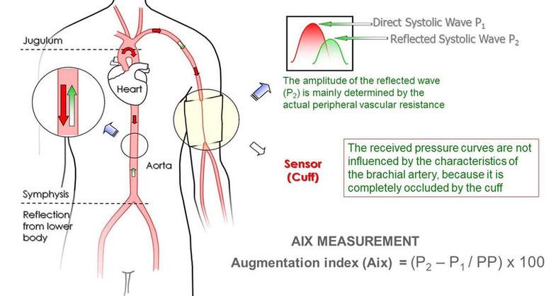 Indice D'Augmentation (AIX)