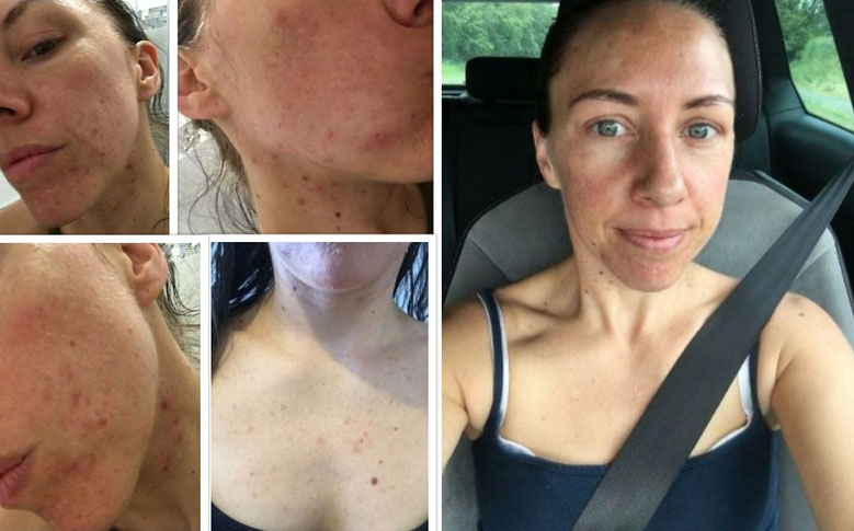 The right picture is me without makeup after using Tropic for around 4 weeks. Not only has Tropic cleared up my spots but it's given me a more even skin tone and put life into it. My face, neck and chest has improved so much!