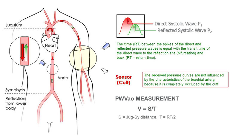 Aortic Pulse Wave Velocity (PWVao)