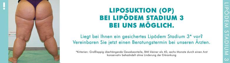 Liposuktion bei Lipödem Stadium 3 im MVZ Praxis Dr. Cornely Düsseldorf