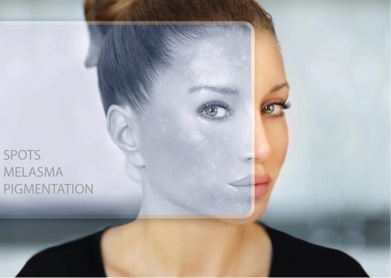 Weil wir alle danach streben auch im Alter attraktiv und jung zu bleiben, gehört das Entfernen kosmetische Hautveränderungen bereits zum Alltag.