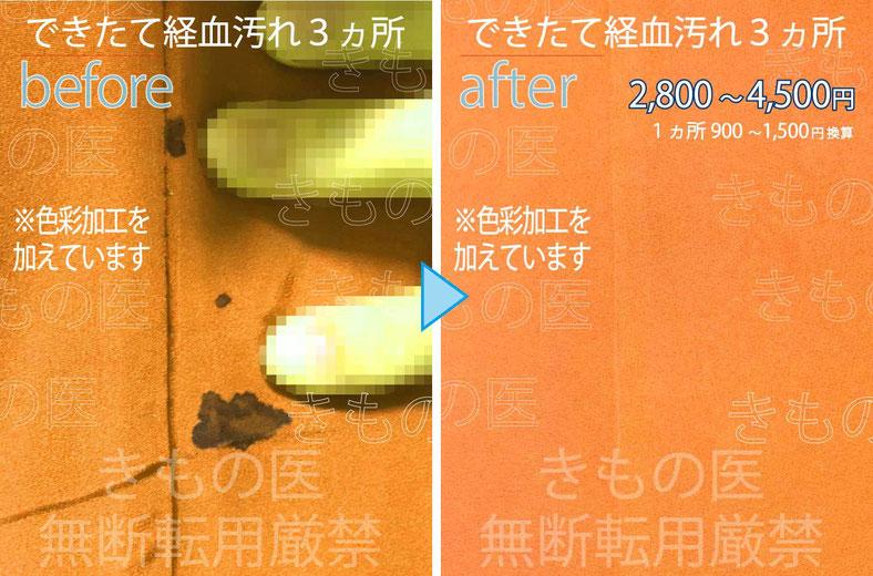 着物染み抜き料金付きクリーニングビフォーアフター画像:お尻にできた生理の経血汚れ3ヵ所の汚れの状態とキレイに染み抜きした後の対比画像