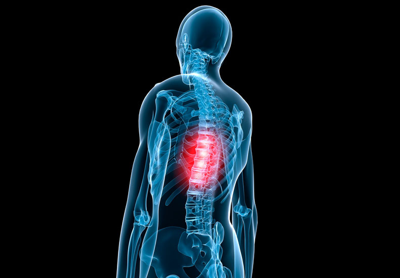akute und chronische Rückenschmerzen - Physiotherapie..