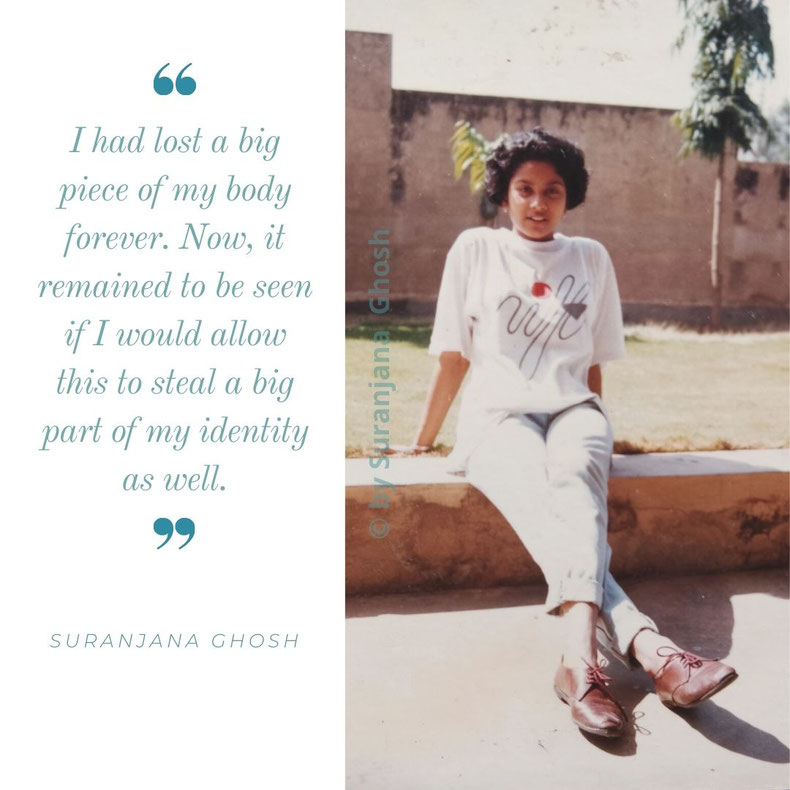 """Would I allow myself to be defined by my limb loss?"" Suranjana at 18, a few months before being diagnosed with Osteosarcoma. (picture courtesy of Suranjana Ghosh)"