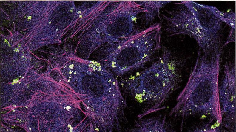 Das mikroskopische Foto zeigt Lungenzellen nach der Aufnahme von Nanopartikel.