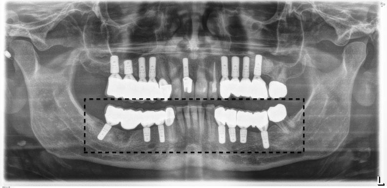 Später: Auch im Unterkiefer wurden zu einen späteren Zeitpunkt die nichtmehr funktionstüchtigen Zähne, Kronen und Brücken durch sieben Implantate ersetzt