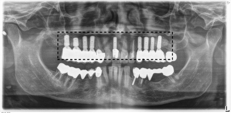 Nachher: Umfangreiche Wiederherstellung der Kaufunktion durch Ersatz jedes einzelnen fehlenden Zahnes durch 9 Implantate (mit Knochenaufbau)