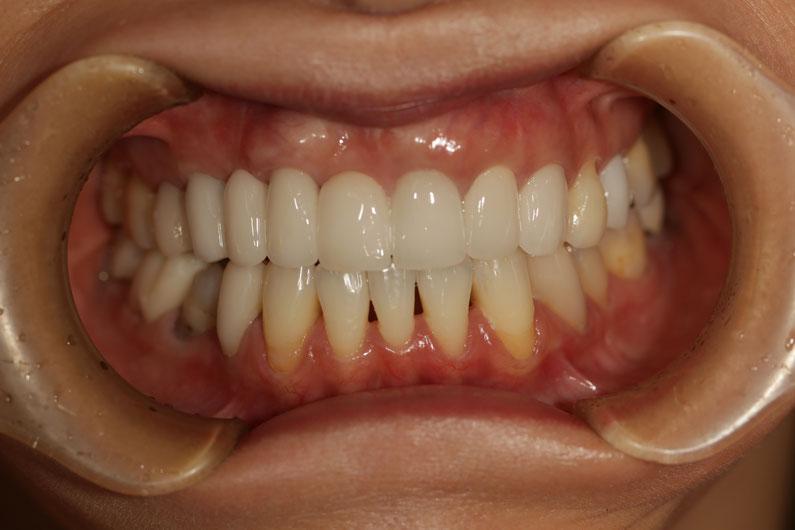 歯茎の再生治療 No.65差し歯が長い場合の審美歯科ケース