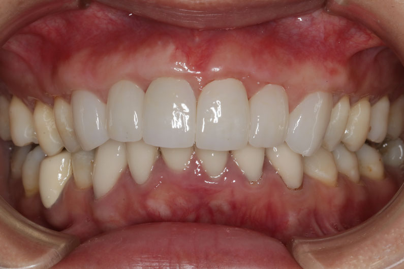 長いセラミックの歯を小さくする治療